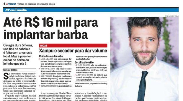 Até R$ 16 mil para implantar barba